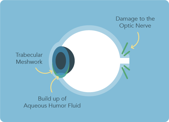 SES_GlaucomaInfographic-01